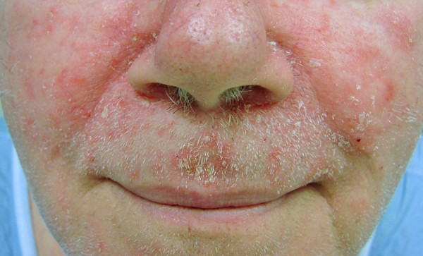reddened skin around a man's mouth and nose