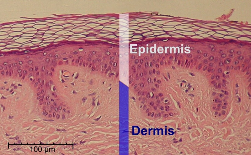 skin section dermis and epidermis