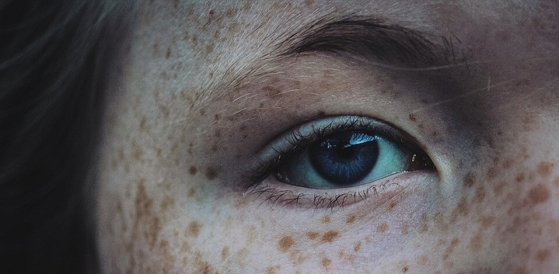 How to Remove Freckles: Methods and Costs