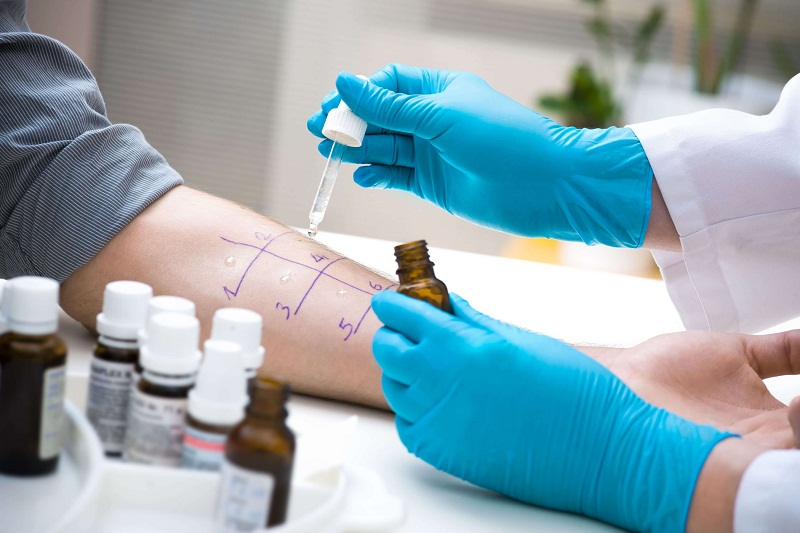 testing a patient for skin allergies