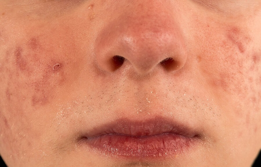 Cystic Acne Treatment: How to Get Rid of Severe Pimples?