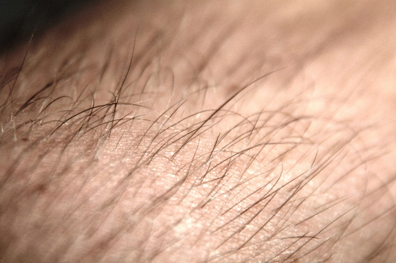 IPL hair removal side effects