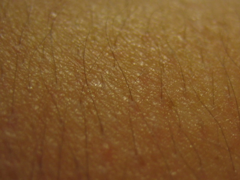 How to Get Rid of Chicken Skin: Keratosis Pilaris Explained