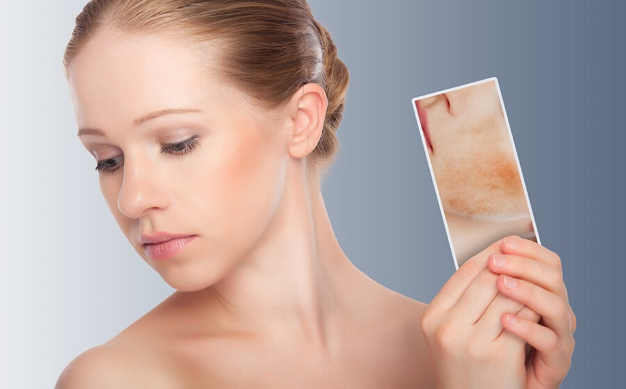 woman with healthy complexion holding a picture of a complexion with blemishes