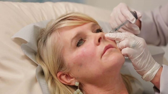 hyaluronic acid injections for wrinkles