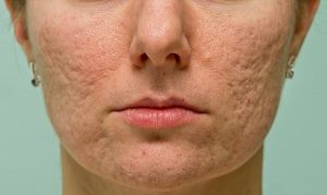 How to Remove Acne Scars: The Complete Guide