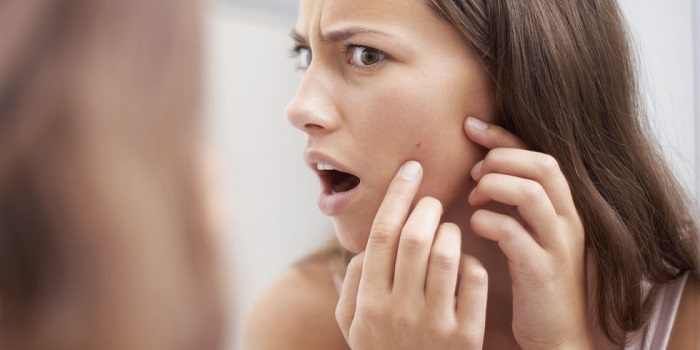 woman shocked to see a pimple