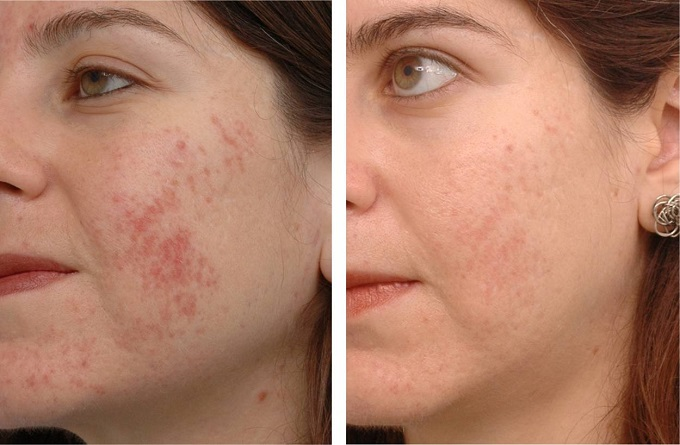 woman before and after ipl