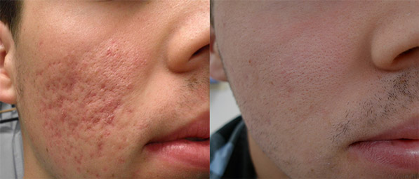 acne scars following laser treatment