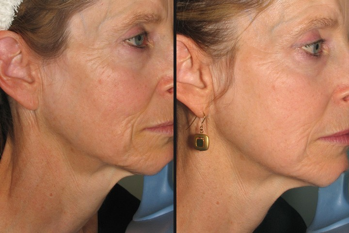 Skin Tightening Laser Treatment: How It Works, Pros and Cons