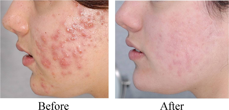 tretinoin cream before and after