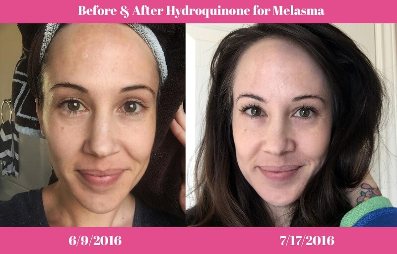 hydroquinone before and after