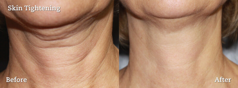 before and after pictures of a woman with neck wrinkled who has had a skin tightening procedure