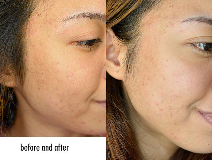 before and after using a skin lightening cream with kojic acid