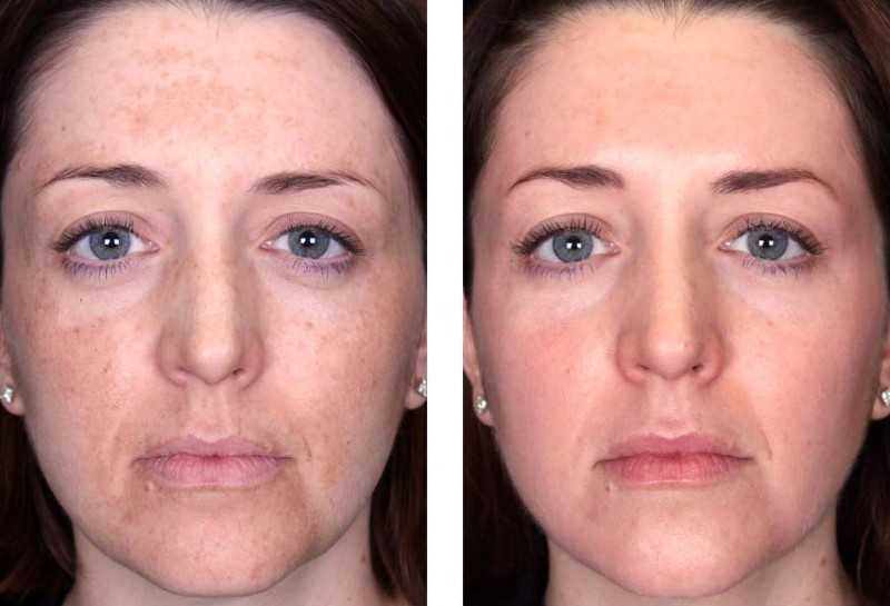 woman's face skin before and after a chemical peel