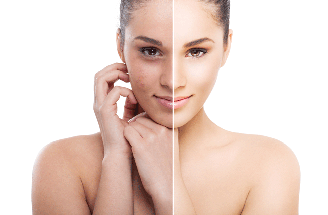 woman before and after using an skin peel