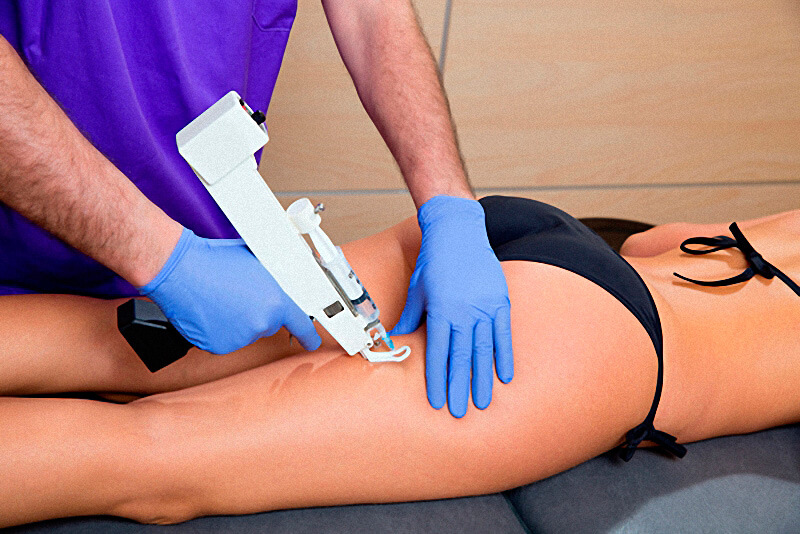 Carboxytherapy for Cellulite Guide: Effectiveness, Side Effects, and Costs