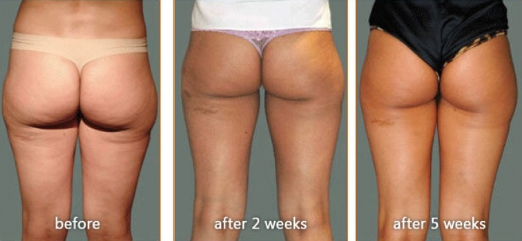 Carboxytherapy for Cellulite before and after