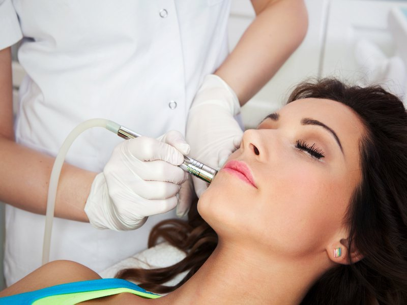 Woman receiving Laser Skin Resurfacing