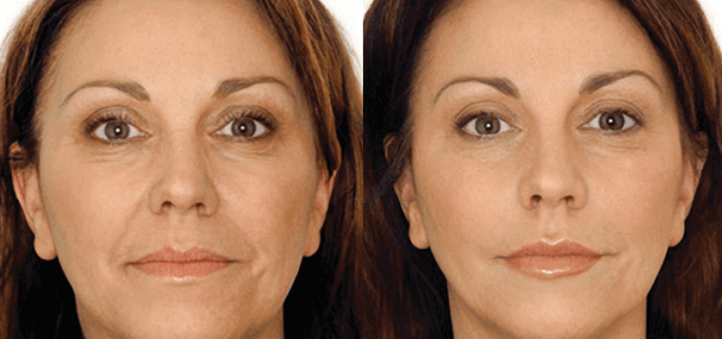 before and after pictures of the effects of facial acupuncture