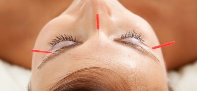 Facial Acupuncture for Wrinkles Benefits, Effectiveness, and Risks