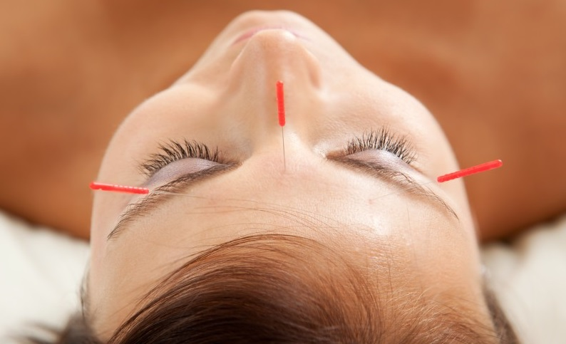 woman with acupuncture needles stuck on her face