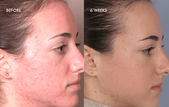 woman photographed before and after a silk peel