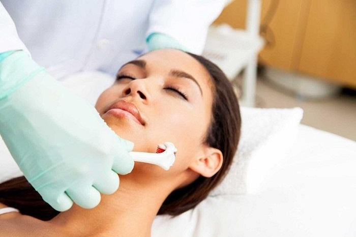 what is micro needling