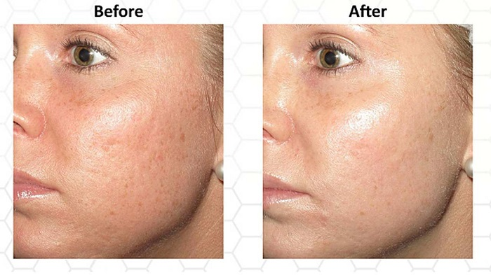 before and after doing a microneedling procedure