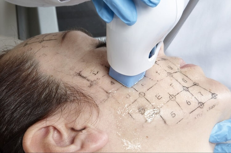 woman receiving thermage skin tightening treatment