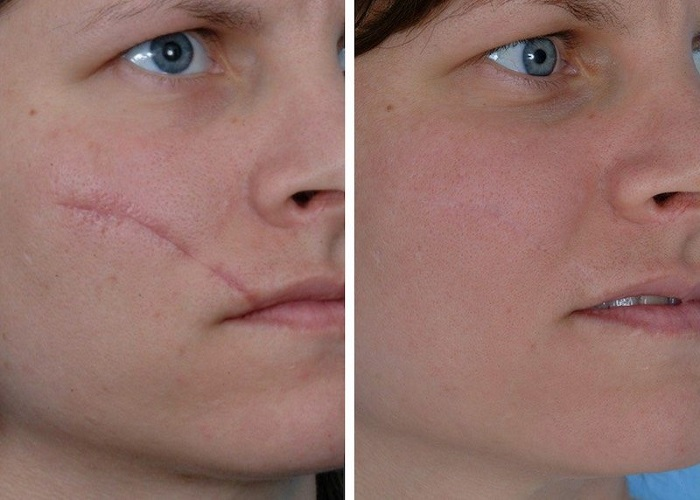 Laser scar removal before and after prictures
