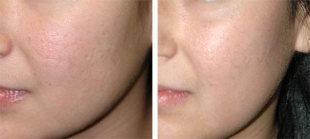 Carbon Dioxide Laser Treatment