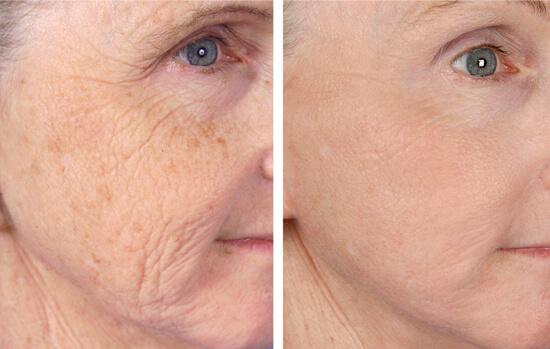 Non-ablative laser resurfacing before and after