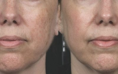 Before and After Non Ablative Laser Resurfacing