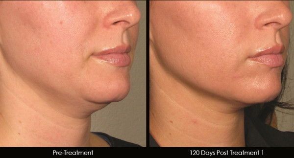 ultrasound skin tightening before and after
