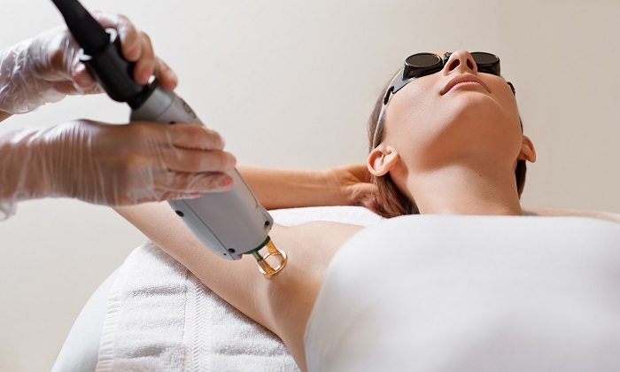 woman undergoing laser hair removal