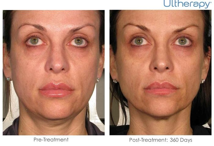 Ultherapy before and after pictures
