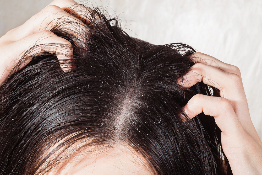 What's the Best Shampoo for Dry Scalp? Top 10 Revealed